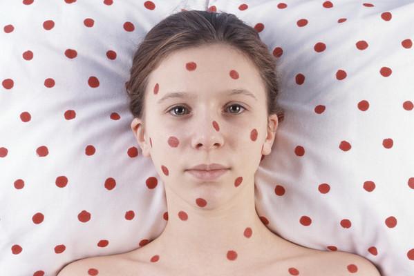 Красные пятна на коже: виды и причины появления