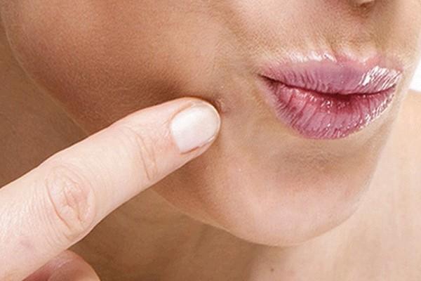 Что такое бородавки и как от них избавиться?