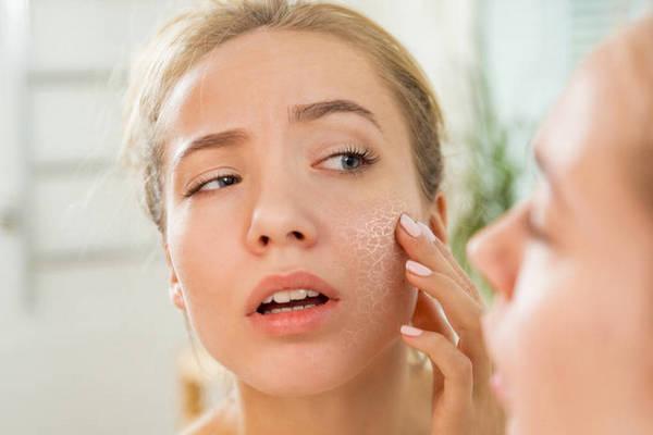 Как справиться с шелушением кожи лица, если крем не помогает