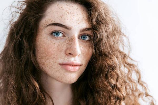 Как избавиться от веснушек без косметолога?