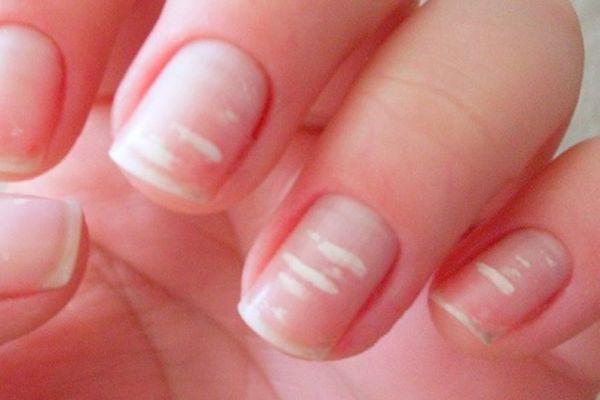Белые пятна на ногтях. Причины и лечение