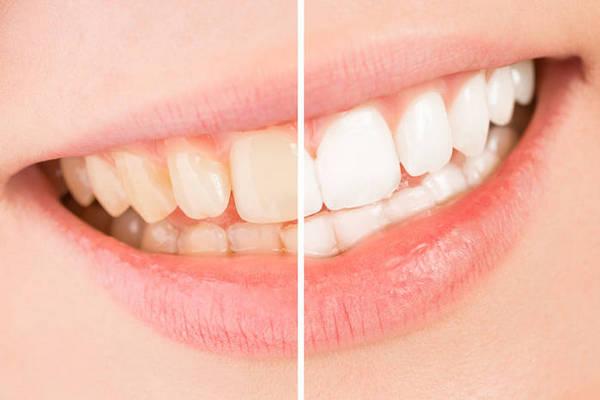 Почему желтеют зубы: 5 основных причин