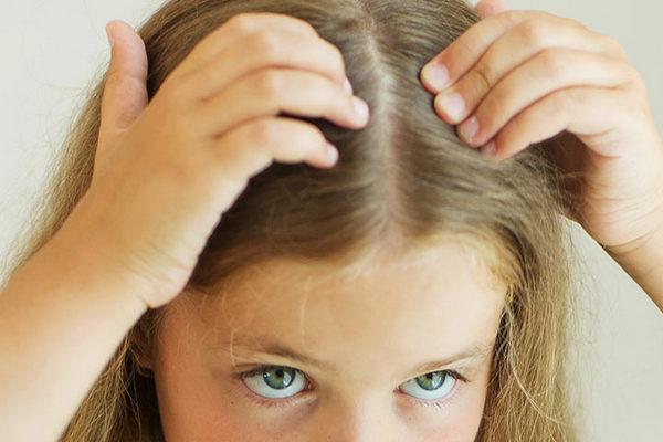 Перхоть у детей: как эффективно вылечить и избавиться