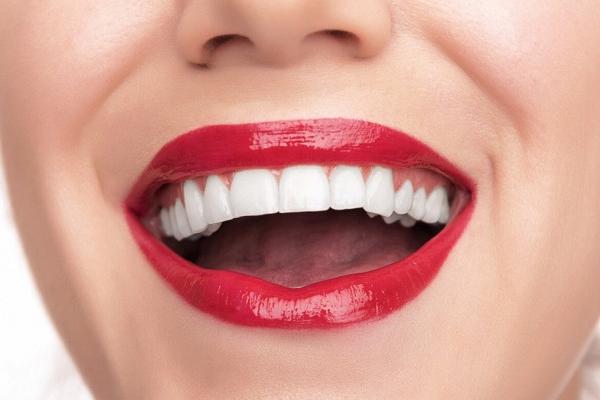 Что такое виниры для зубов и зачем их устанавливать